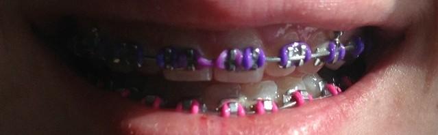 Anna gets braces